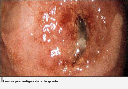 medications for herpes simplex 1 cold sore